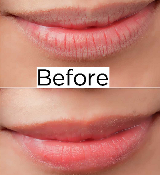 are dry lips and digestion problems related